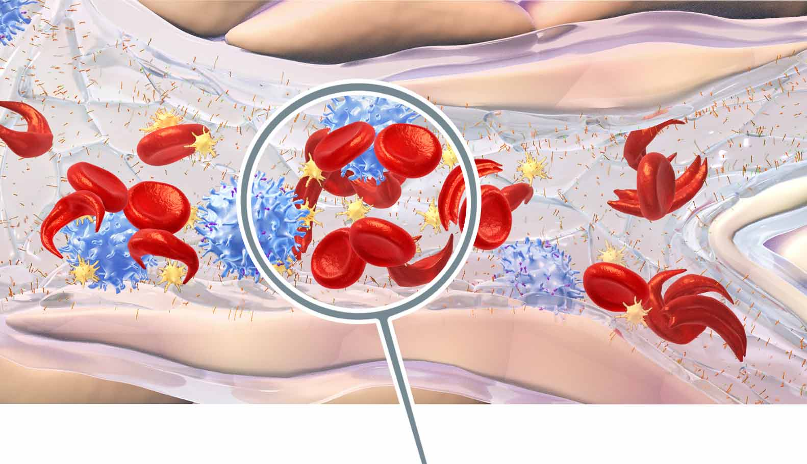 Clusters form in bloodstream in sickle cell disease